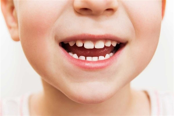 Çocuklarda dişlere özen gösterilmeli