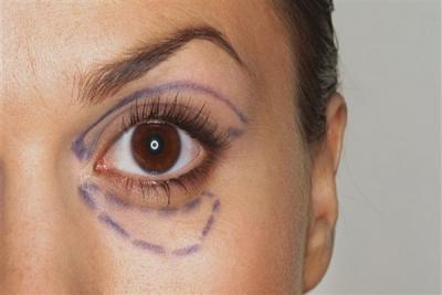 Göz çevresi sorunlarına etkili tedavi